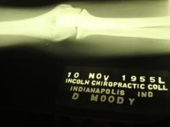 Moody elbow x-ray