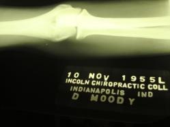 Moody elbow x-ray